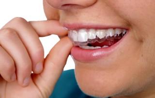 ortodonzia-invisibile-cdrivoli