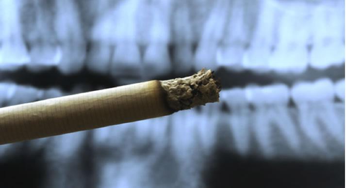 danni-causa-fumo