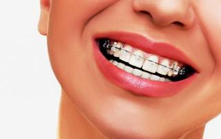 ortodonzia-fissa