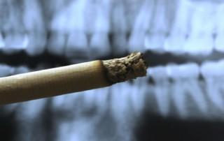 Fumo, sigaretta e denti, quali danni?