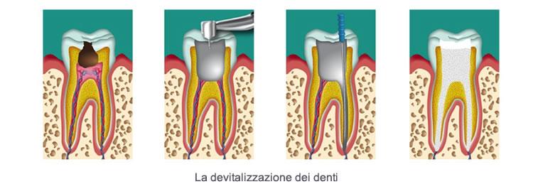 devitalizzazione-denti-disegno